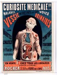 Curiosité médicale (Anonyme) - Muzeo.com